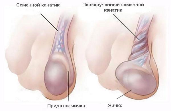 Перекрут семенного канатика яичка