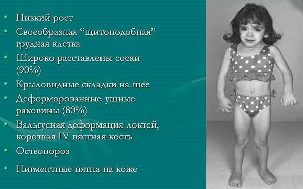 Симптомы моносомии по X хромосоме