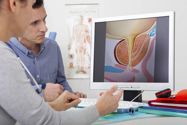 После операции при варикоцеле яичек: восстановление, последствия, секс, беременность, спорт, мастурбация, отек, водянка, температура, как избежать рецидива варикоцеле