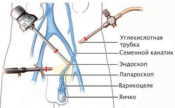 Лапароскопия при варикоцеле: этапы подготовки, проведения и ...