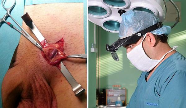 Микрохирургическая операция методом мармара при варикоцеле