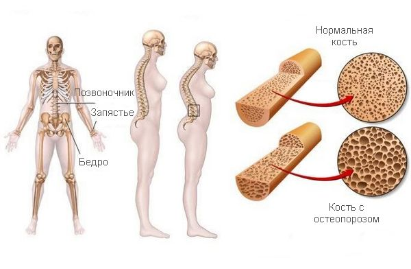Кость при остеопорозе