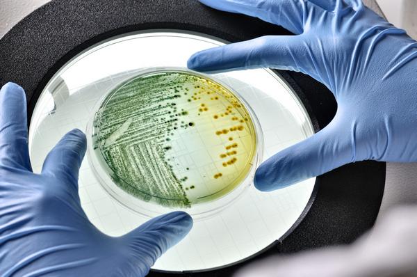 Анализ на генитальный туберкулез