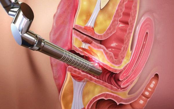 Metoda léčby papilomů lidových léků