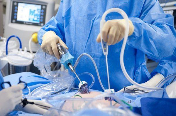 Операция лапароскопия при некрозе миоматозного узла