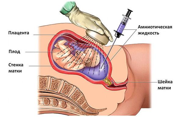 Амниоцентез, как метод инвазивной пренатальной диагностики
