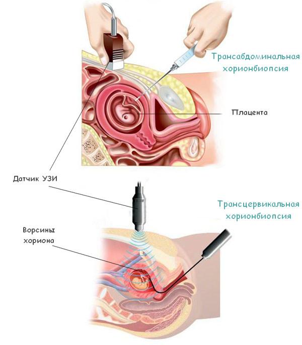 Трансабдоминальный и трансцервикальный метод хорионбиопсии