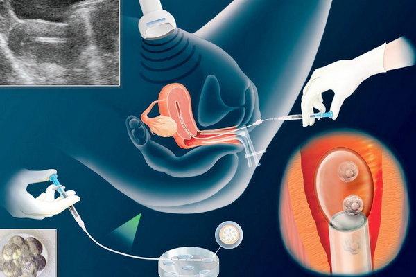 Процедура переноса эмбрионов при ЭКО