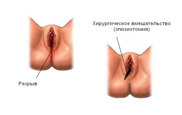 Разрыв промежности при родах и эпизиотомия