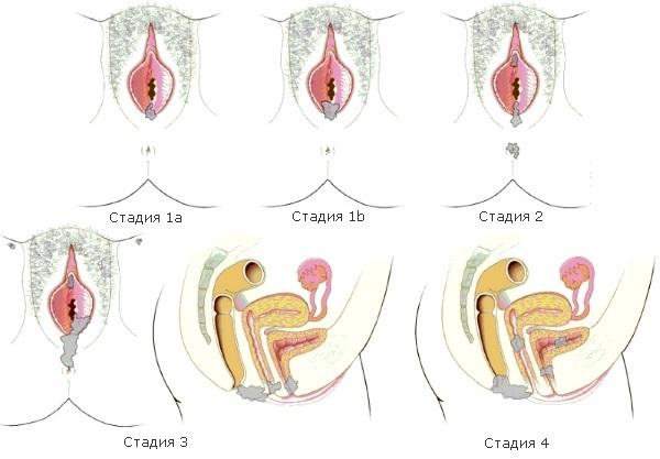 Стадии рака вульвы по степени поражения и распространения опухоли