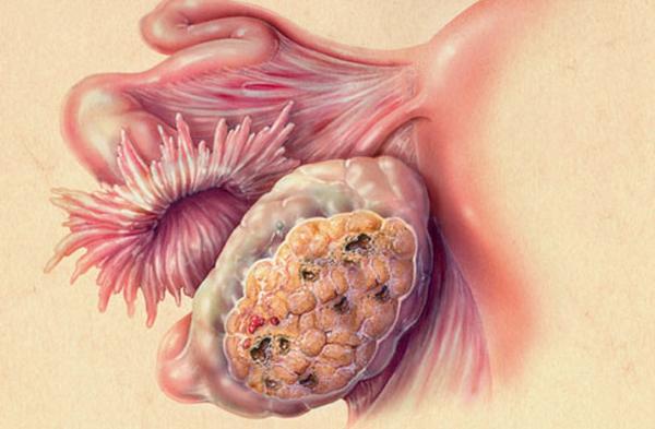 Злокачественное образование в яичнике