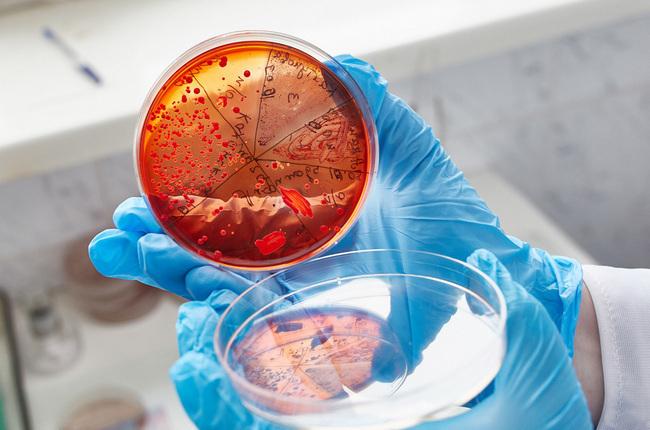 Нормальные и патогенные стрептококки в мазках мужчин