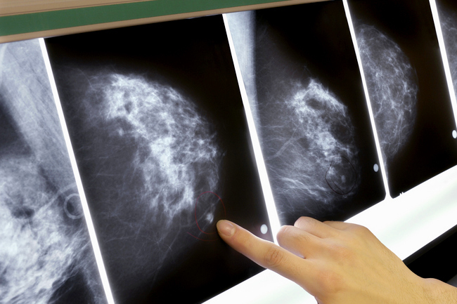 Мастопатия симптомы, лечение народными средствами,