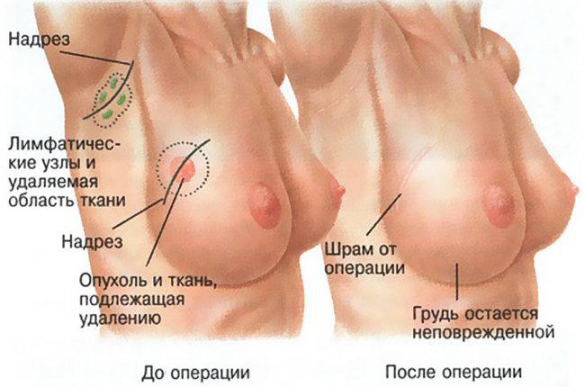 Схема проведения операции ламэктомии
