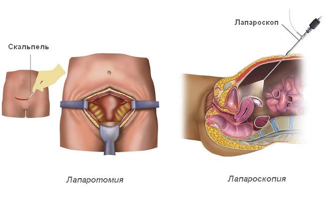 Виды хирургического вмешательства при андробластоме: лапаротомия и лапароскопия