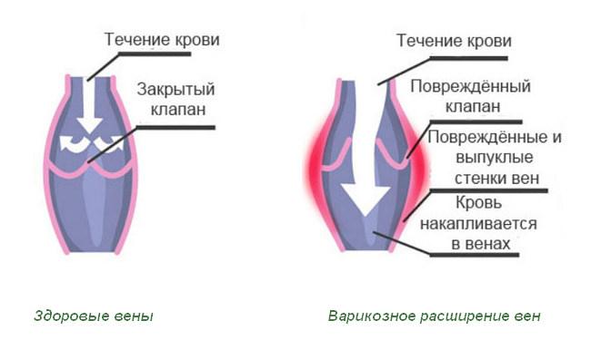 Что такое варикозное расширение вен малого таза