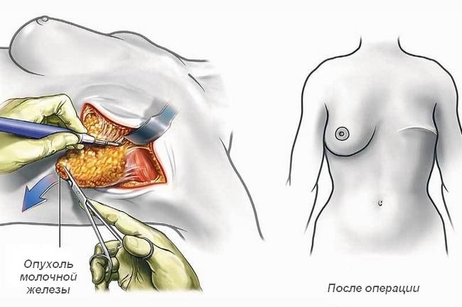 entfernen der prostata