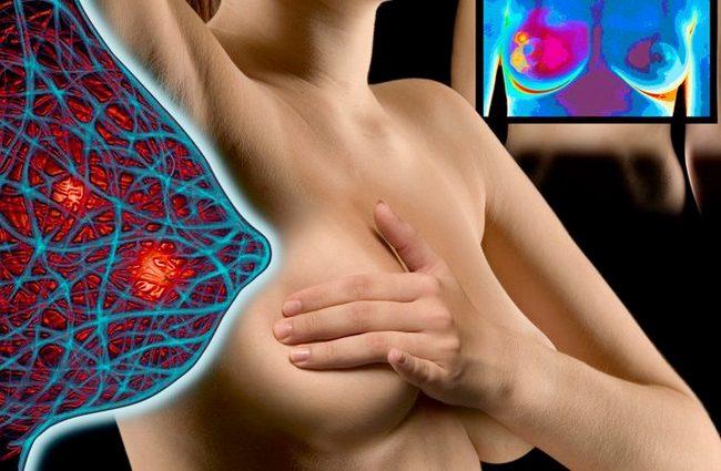 Рецидив рака молочной железы - причины, симптомы, диагностика и лечение, прогноз