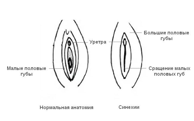 Синехии (сращения) малых половых губ