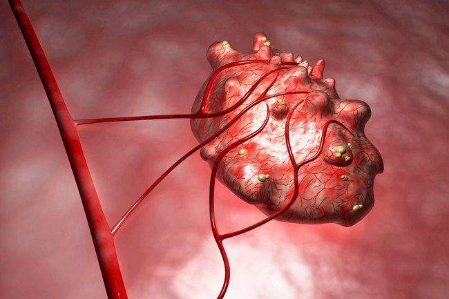 Overgangsalder blødninger