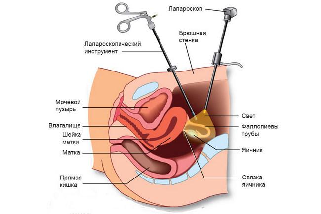 Пиявки в гинекологии (при бесплодия, эндометриозе, лечении воспаления)