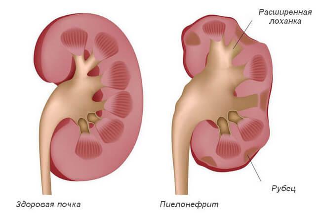 Почка здоровая и при пиелонефрите (расширенная лоханка)