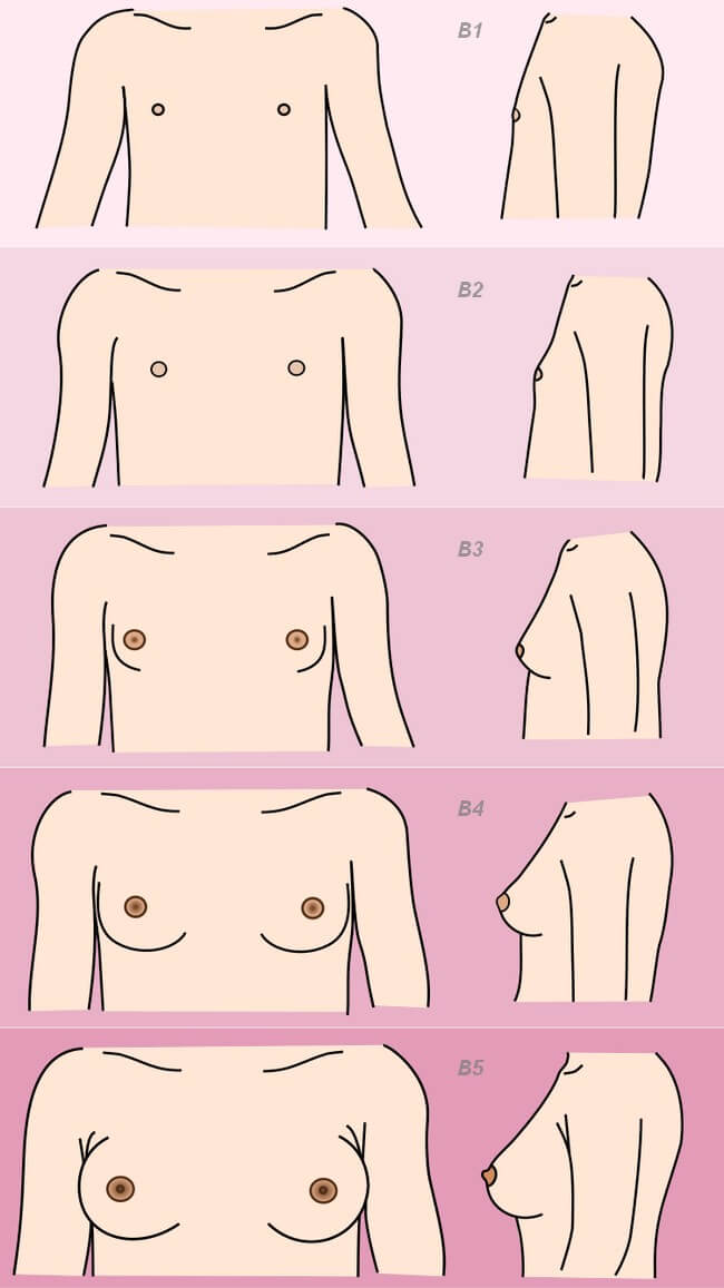 pictures-of-stages-of-girls-breasts