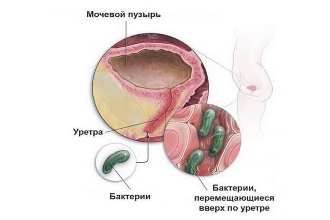 Что такое имвп при беременности
