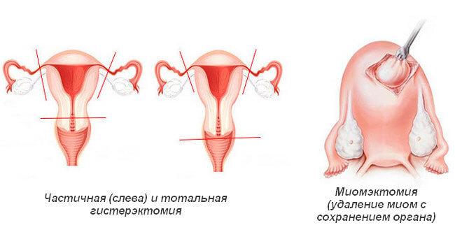Различие гистерэктомии и миомэктомии