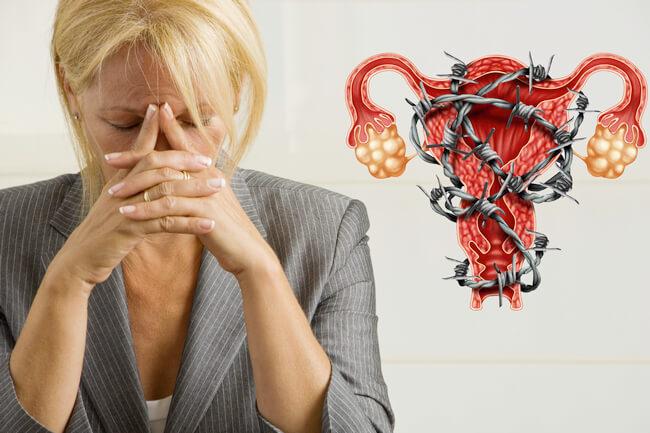 Симптомы миомы матки при климаксе Мой гинеколог