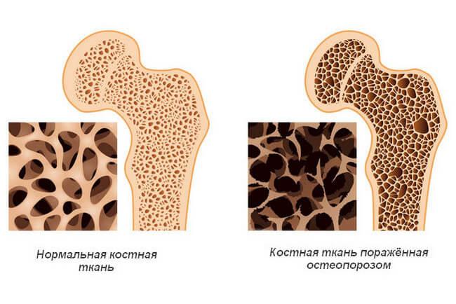 Здоровая кость и поражённая остеопорозом