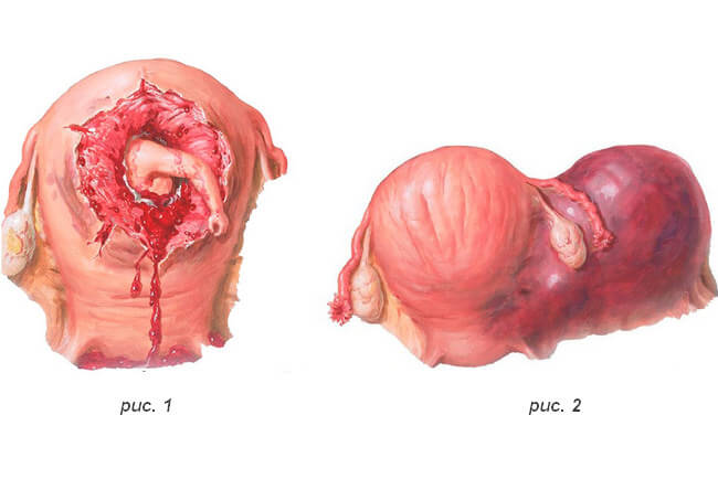 Разрыв матки во время родов 14