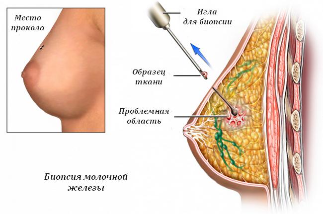 Проведение биопсии молочной железы