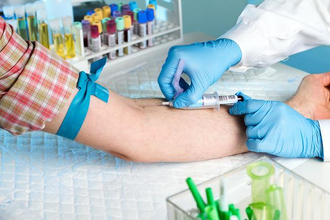 Взятие крови с вены